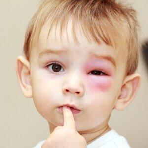 Ребенок с опухшим глазом