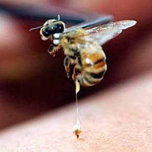 Пчела ужалила