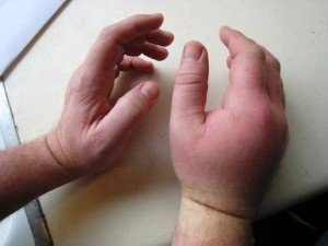 При аллергии апитерапия противопоказана