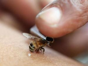 Укус пчелы - от грыжи диска