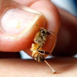 Лечение укусами пчел » Благоздравница