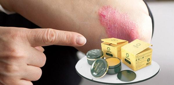 Действие крема против псориаза