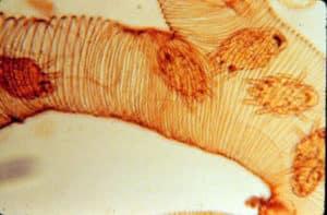 Клещи развиваются в трахеях